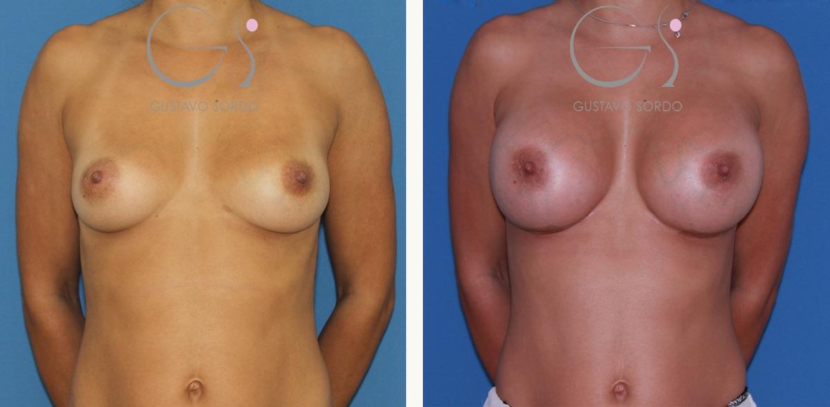 Aumento de mama con prótesis redondas de 450 cc.