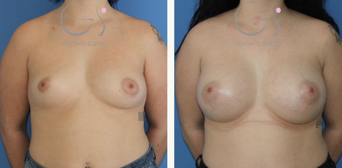Corrección de asimetría severa de mamas con un aumento de pecho