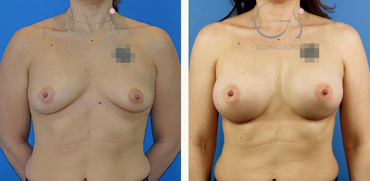 Corrección de asimetría mamaria con implantes de 330 y 295 cc.