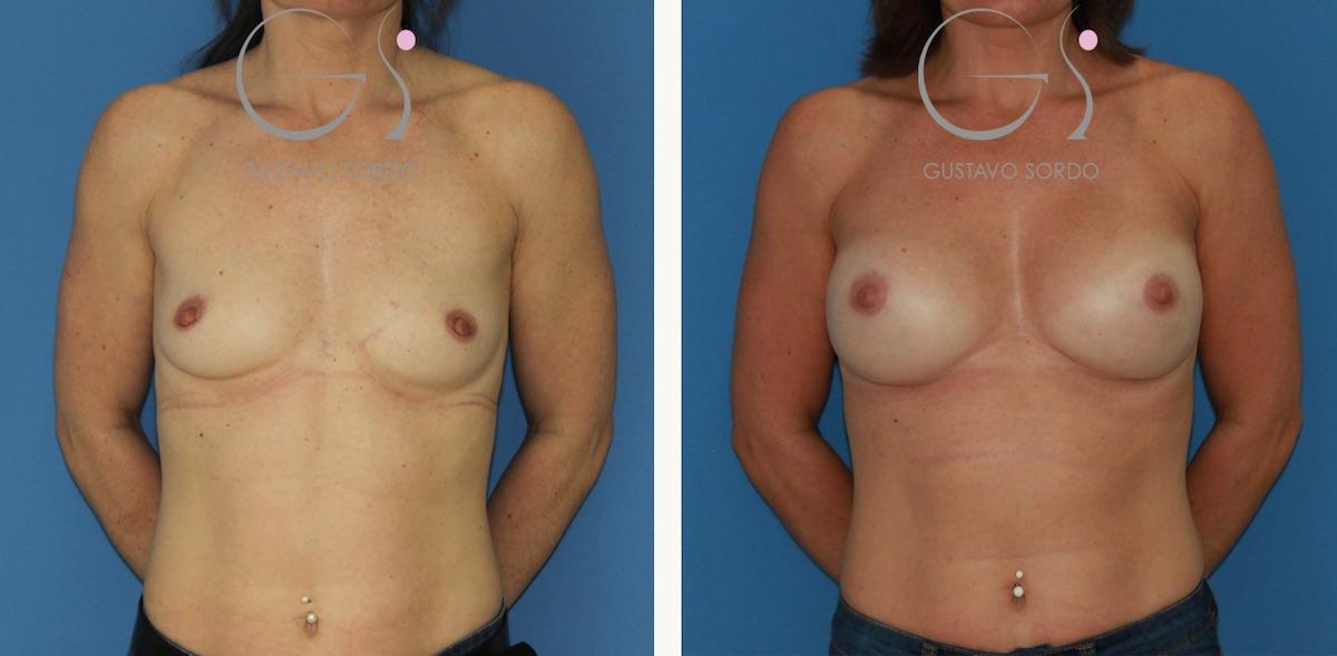 Implantes redondos para conseguir un resultado natural en un aumento de pecho