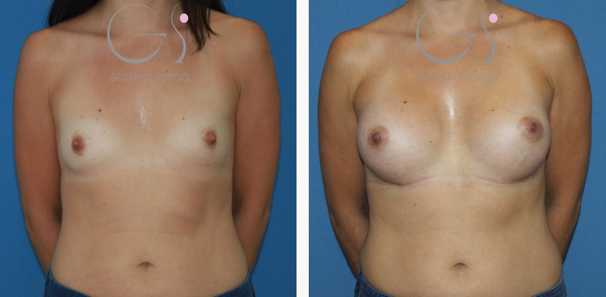 Mamoplastia de aumento con prótesis de 330 cc. anatómicas