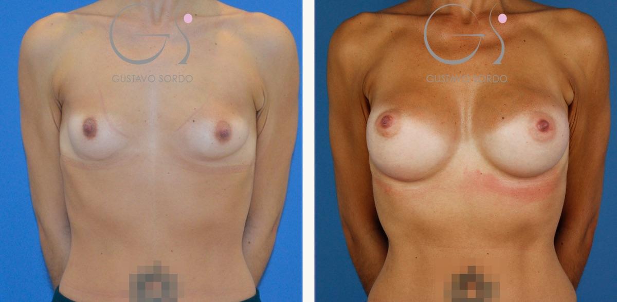 Resultado de un aumento de pecho con implantes de 295 cc. anatómicos